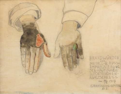 """Josef Heu, """"Brandwunden und Metall- u. Russimprägnierung der Haut durch elektrischen Kurzschluss am 21.V.1917. Garnisons-Spital Nr. 2."""", 1917"""